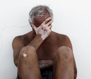 老年白癜风的症状有哪些