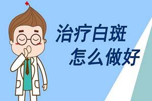 患有白癜风应该如何医治才好