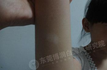 女子肘部白斑,早期治疗三月康复