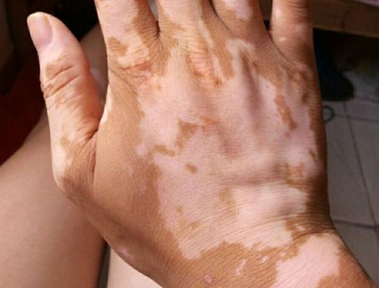 手指长白斑应该怎么治疗?